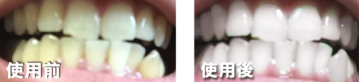 before_after-2