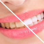 Breaching teatment, woman perfect whiten teeth